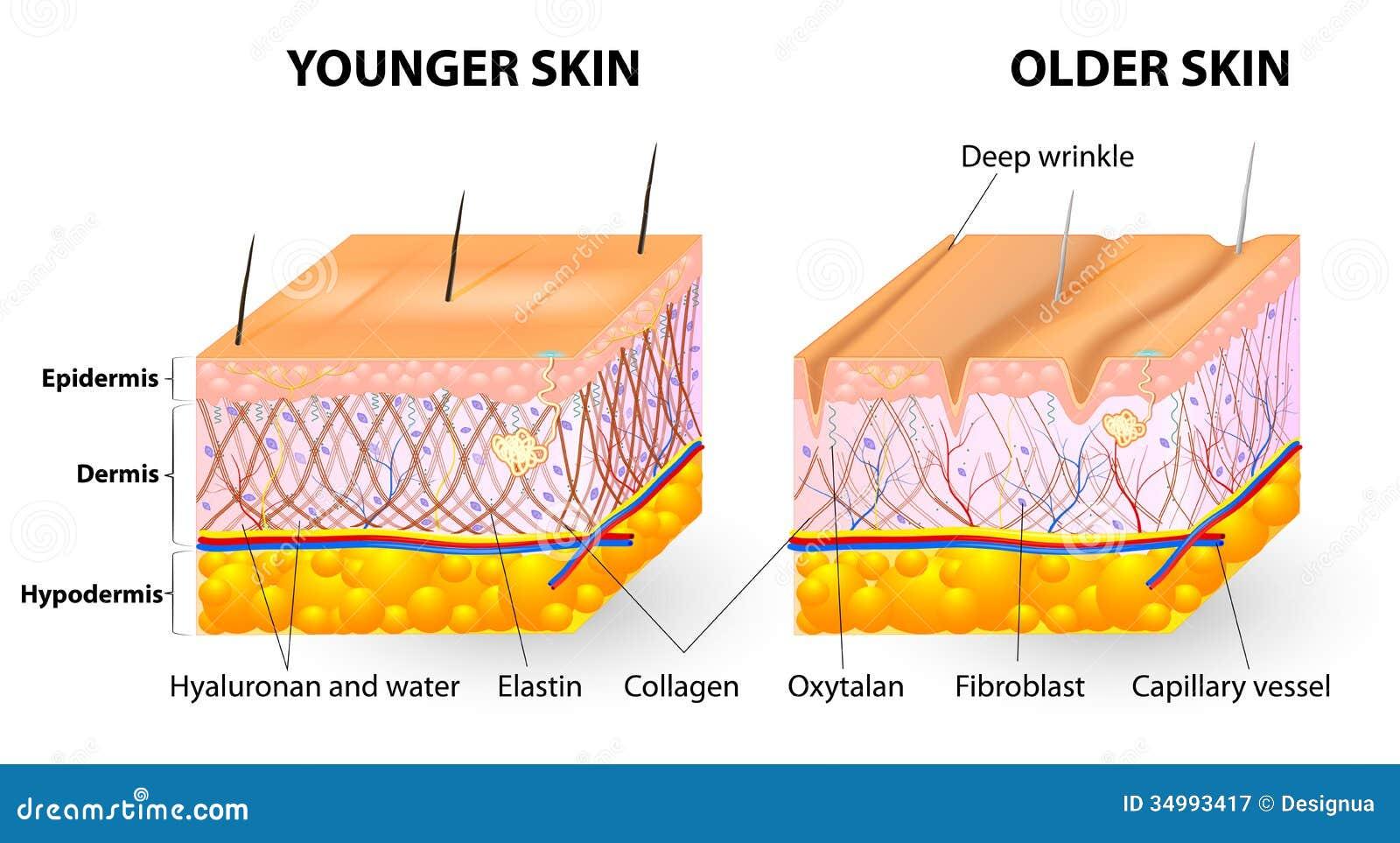 Γήρανση δερμάτων
