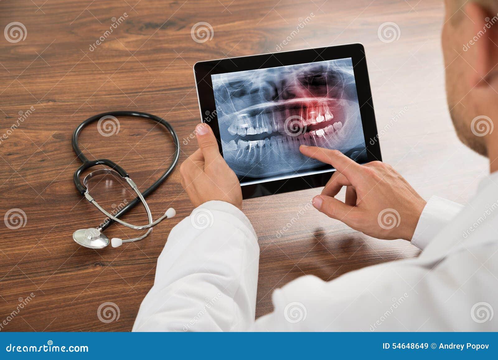 Γιατρός που εξετάζει την ανθρώπινη ακτίνα X δοντιών