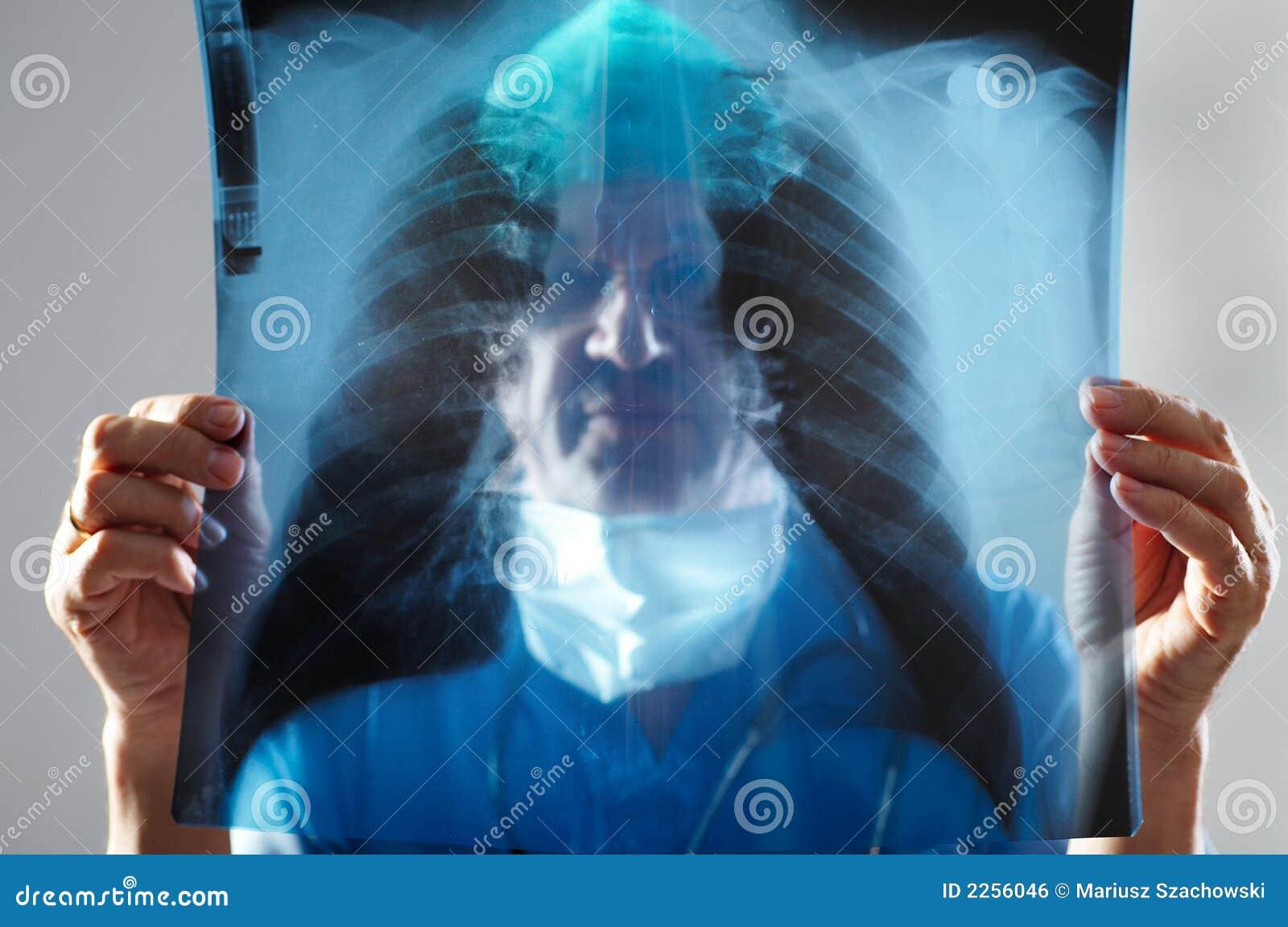 γιατρός που φαίνεται ακτί&n