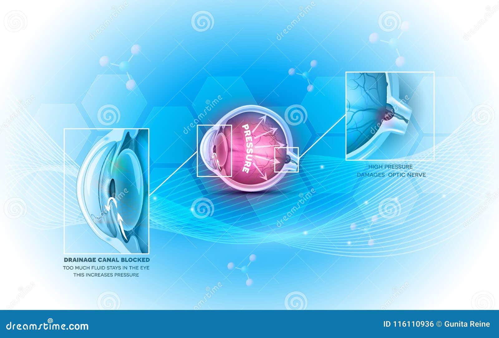 Γλαύκωμα η ασθένεια ματιών
