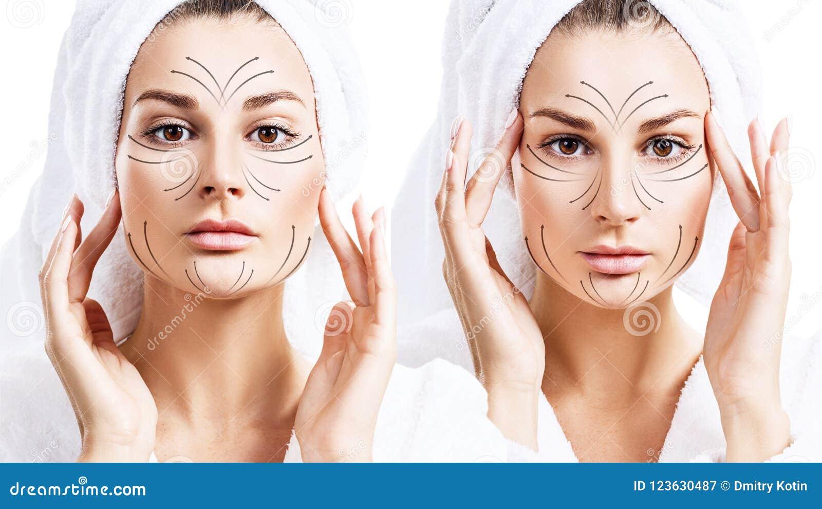 Γραμμές μασάζ στο όμορφο πρόσωπο της νέας γυναίκας στο μπουρνούζι