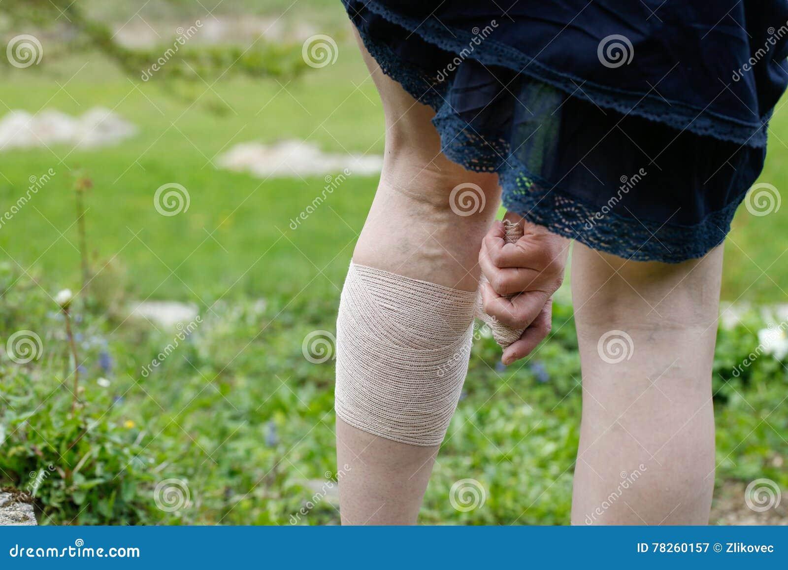 Γυναίκα με τις κιρσώδεις φλέβες που εφαρμόζει τον επίδεσμο συμπίεσης