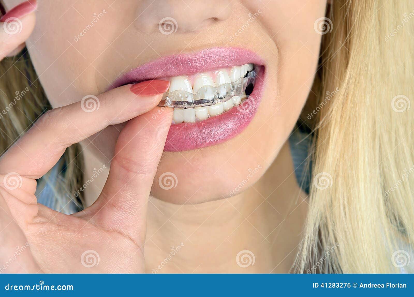Γυναίκα με το mouthguard