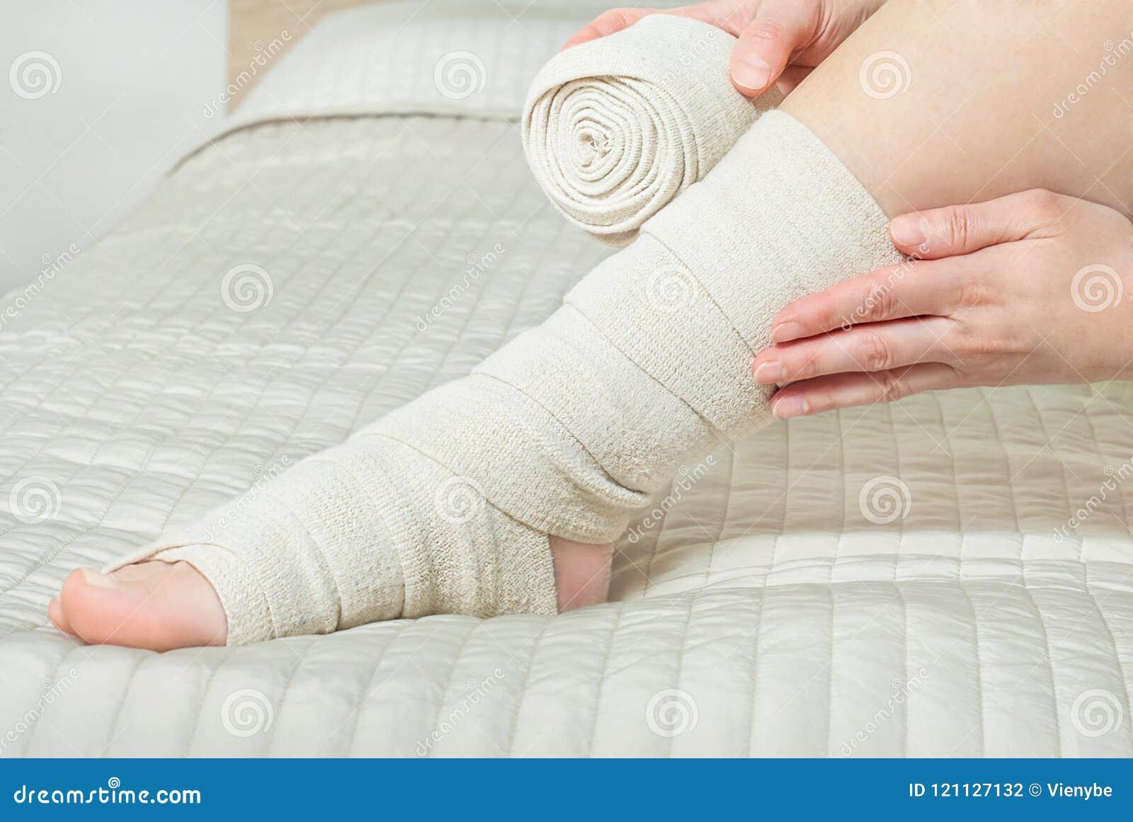Γυναίκα που εφαρμόζει τον ελαστικό επίδεσμο συμπίεσης ως πρόληψη θρόμβωσης μετά από την κιρσώδη χειρουργική επέμβαση