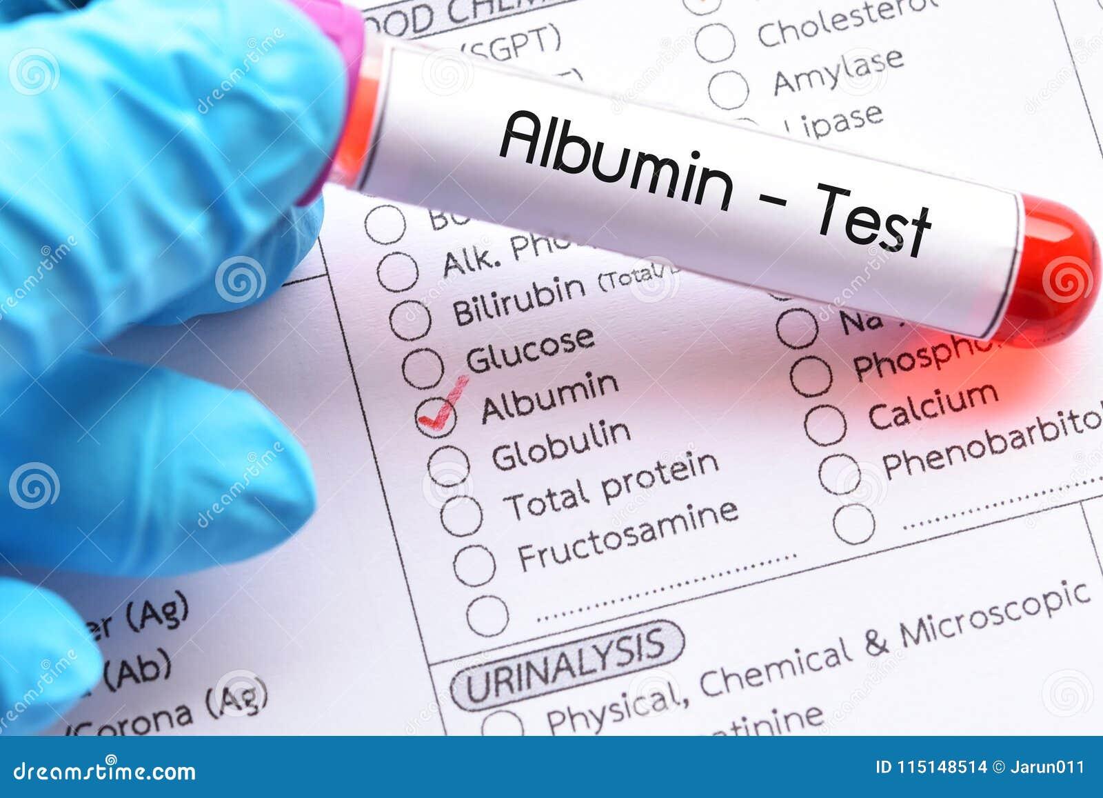 Δείγμα αίματος για τη δοκιμή λευκωματίνης