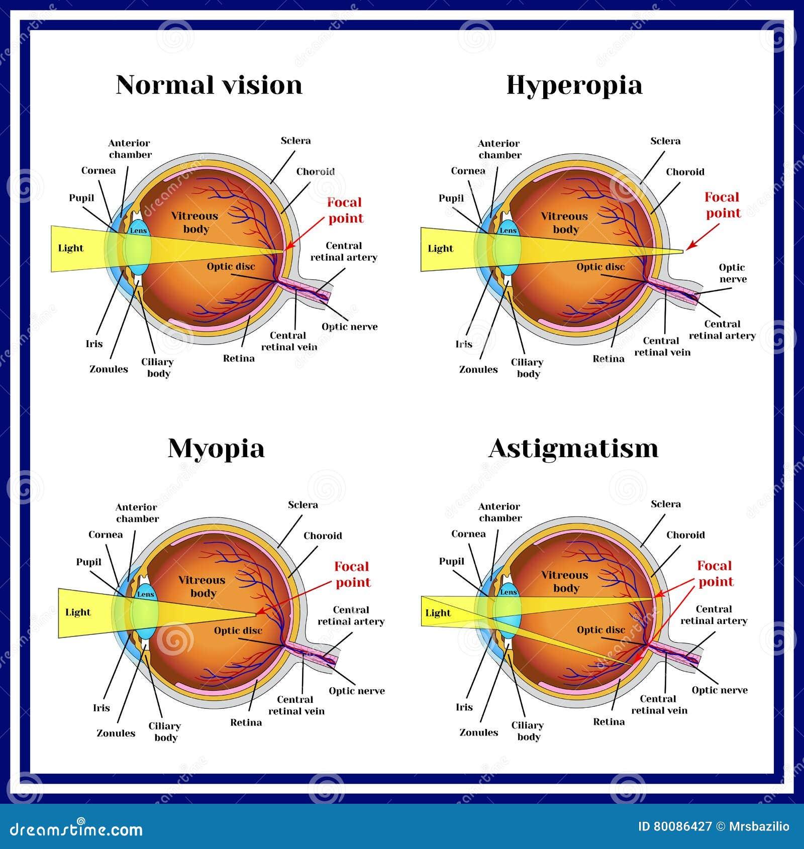 2ebcec3a04 Διαθλαστικός βολβός του ματιού λαθών  Hyperopia