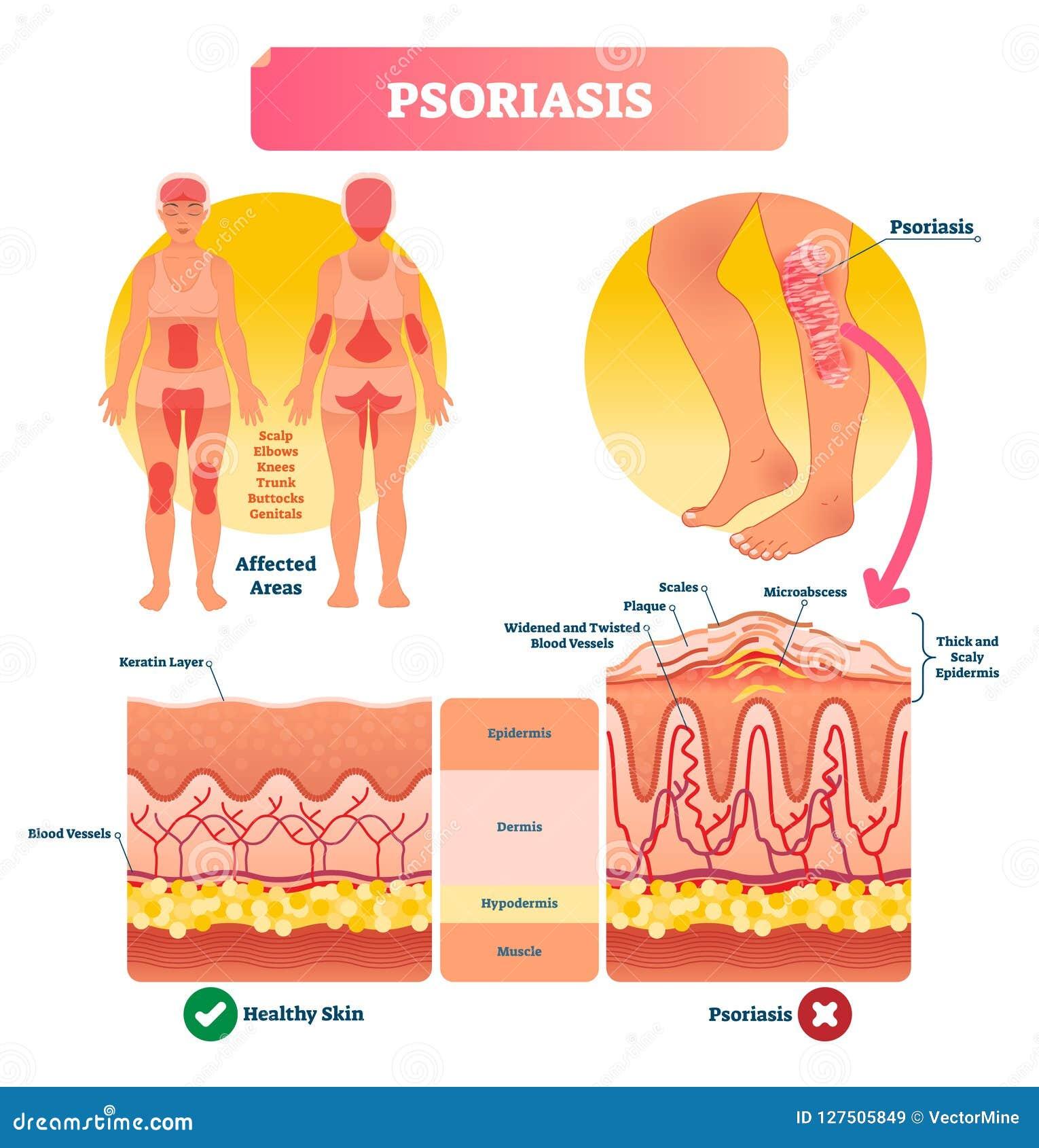 Διανυσματική απεικόνιση ψωρίασης Ασθένεια και ασθένεια δερμάτων Επονομαζόμενη δομή