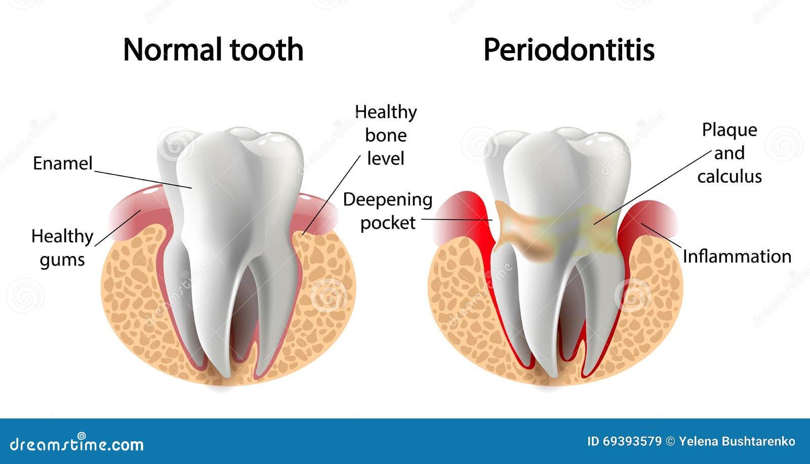 Διανυσματική ασθένεια Periodontitis δοντιών εικόνας