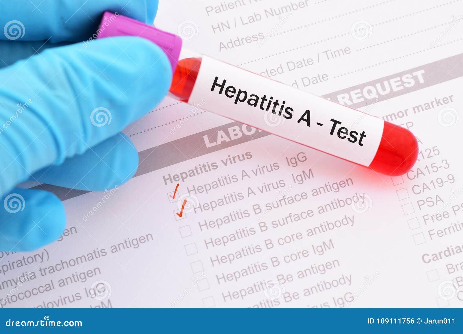 Δοκιμή ιών ηπατίτιδας Α