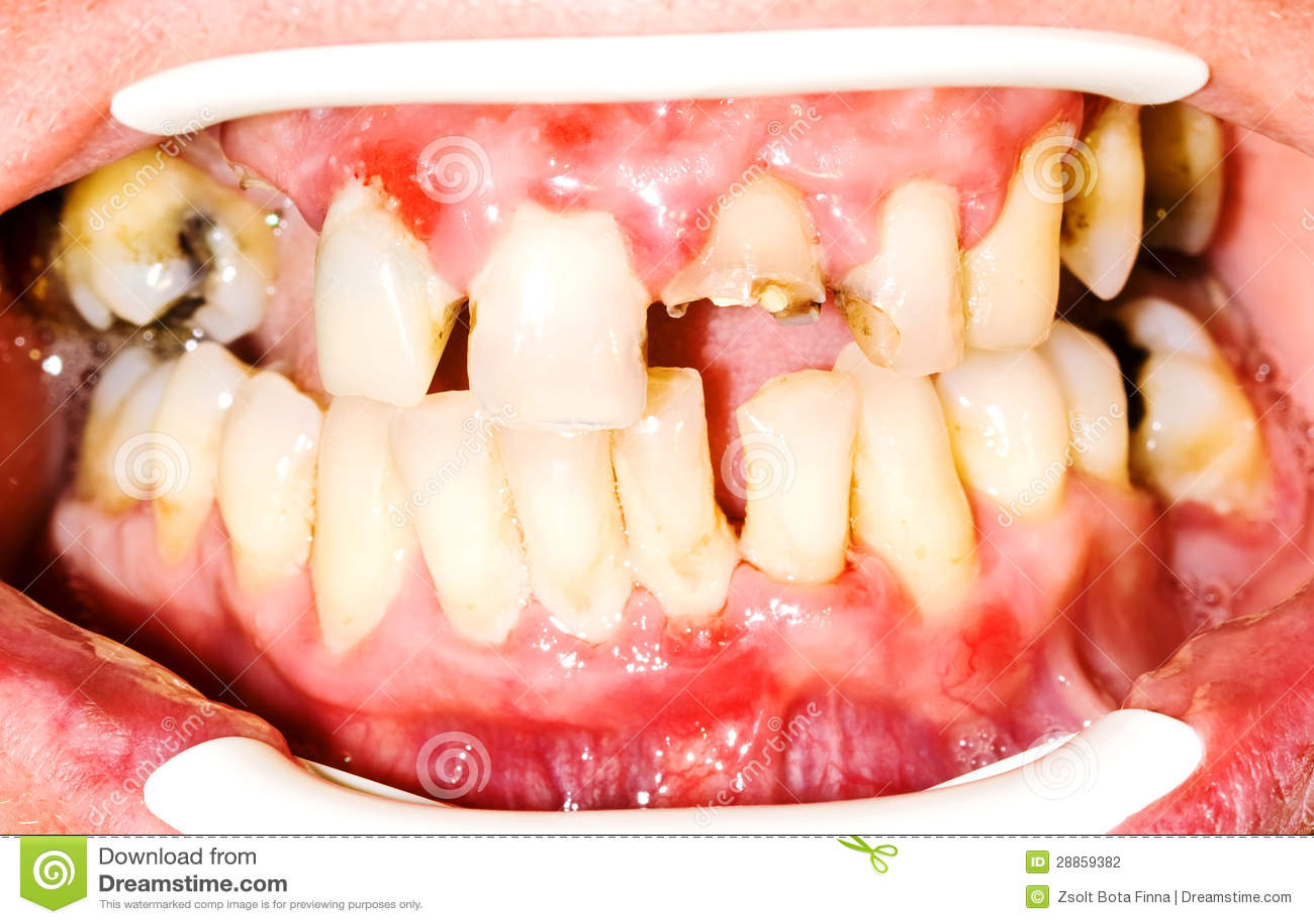 Δόντια Unhealhty