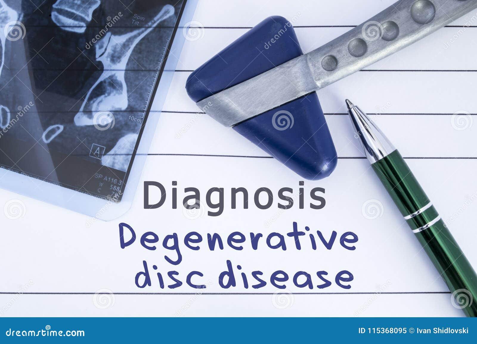 Εκφυλιστική ασθένεια δίσκων διαγνώσεων Ιατρική ιστορία υγείας που γράφεται με τη διάγνωση της οσφυικής ασθένειας δίσκων, ιερή σπο