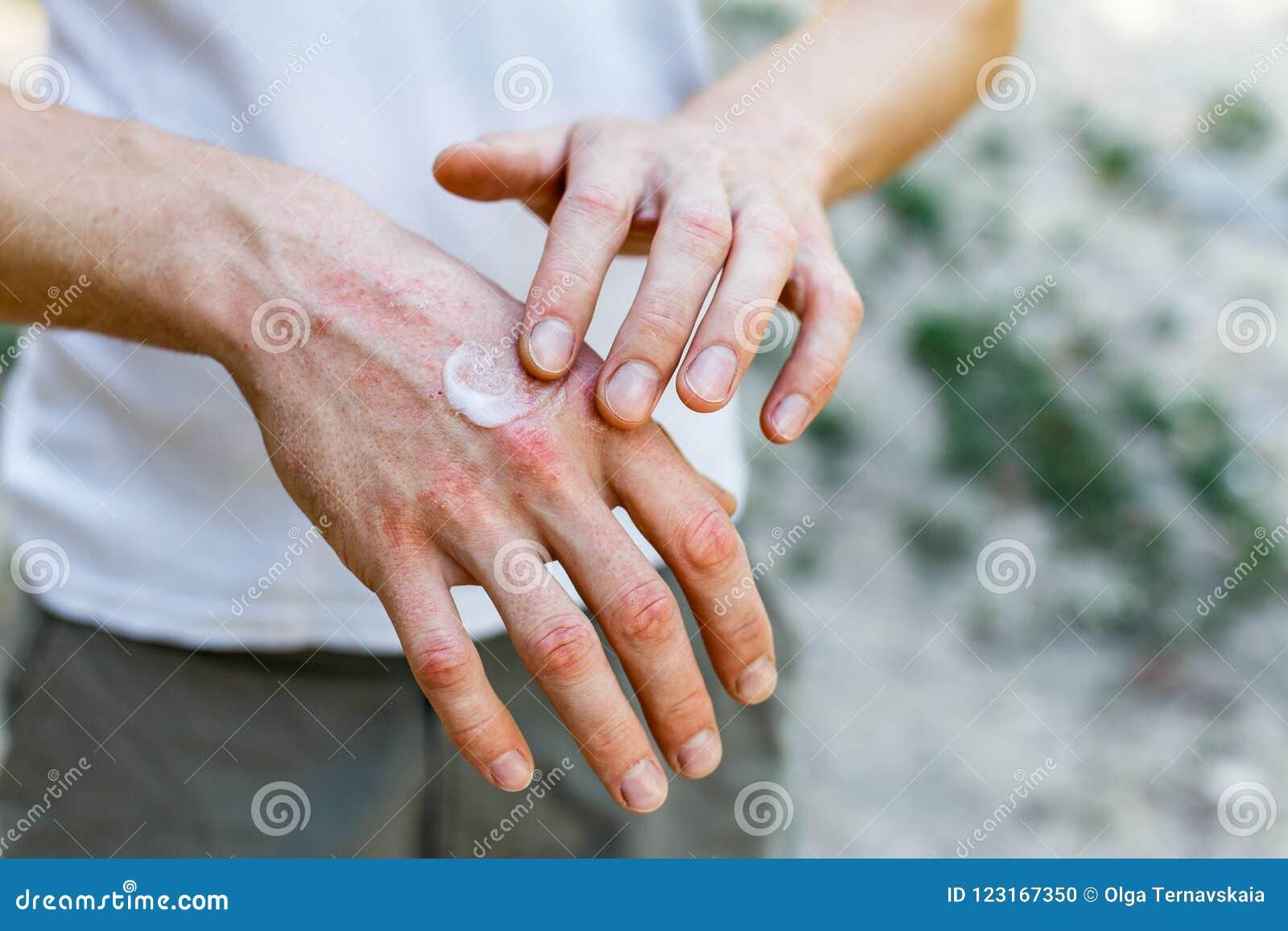 Εφαρμόζοντας emollient στο ξηρό λεπιοειδές δέρμα όπως στη θεραπεία της ψωρίασης, του εκζέματος και άλλων ξηρών όρων δερμάτων άσπρ