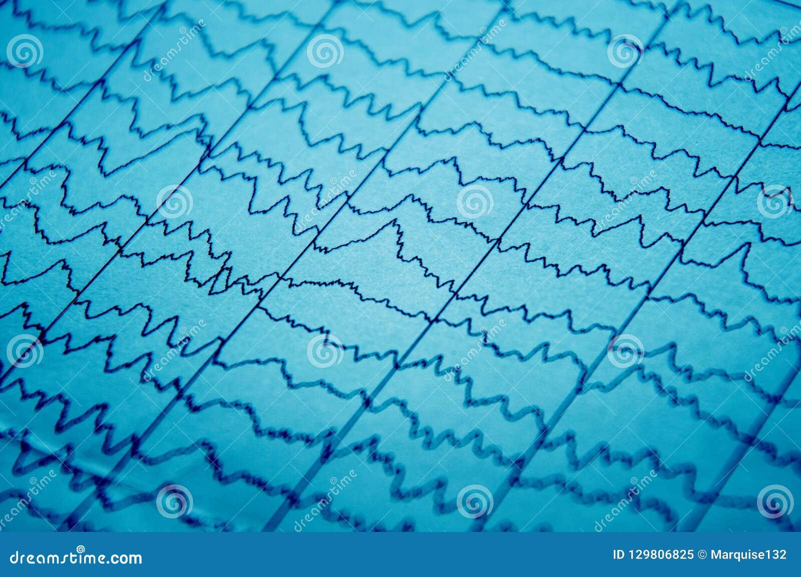 Ηλεκτρο φυσιολογικός έλεγχος EEG metod Ηλεκτρική δραστηριότητα του εγκεφάλου