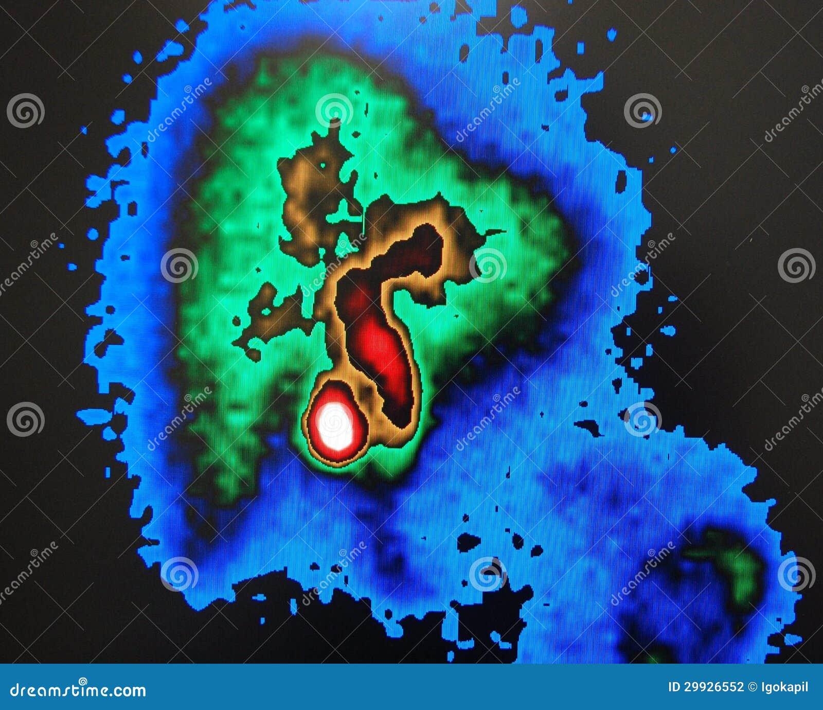 Πυρηνική ανίχνευση χοληδόχων κύστεων