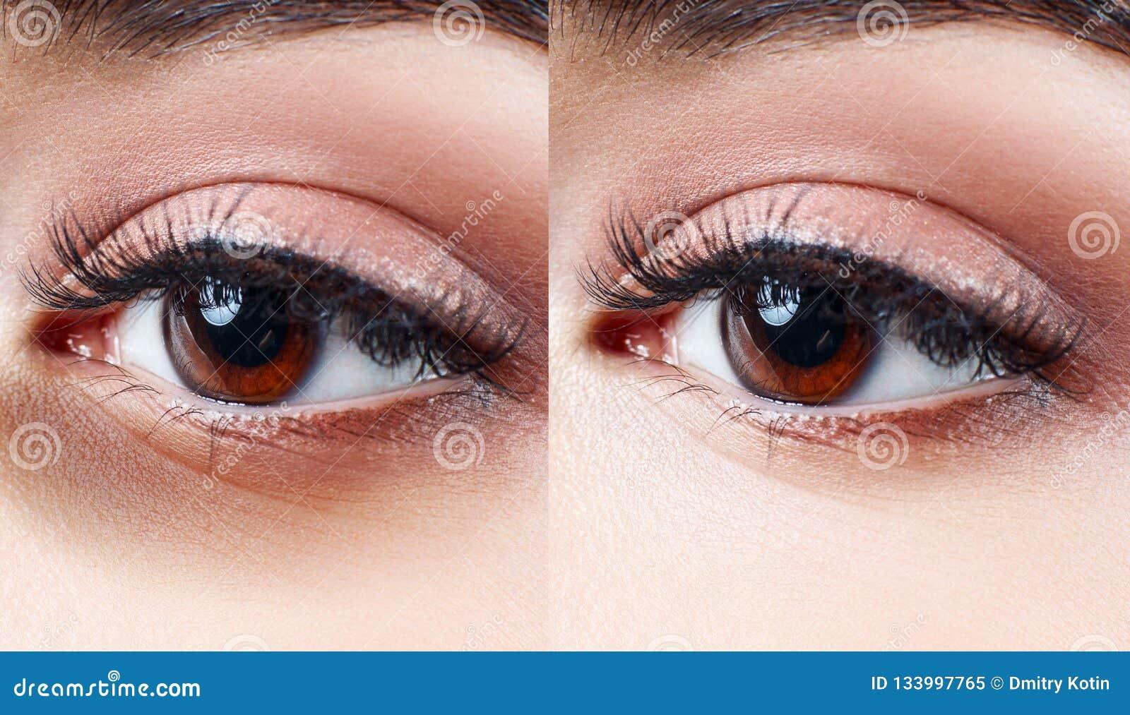 Θηλυκά μάτια με τους μώλωπες κάτω από τα μάτια πριν και μετά από την επεξεργασία