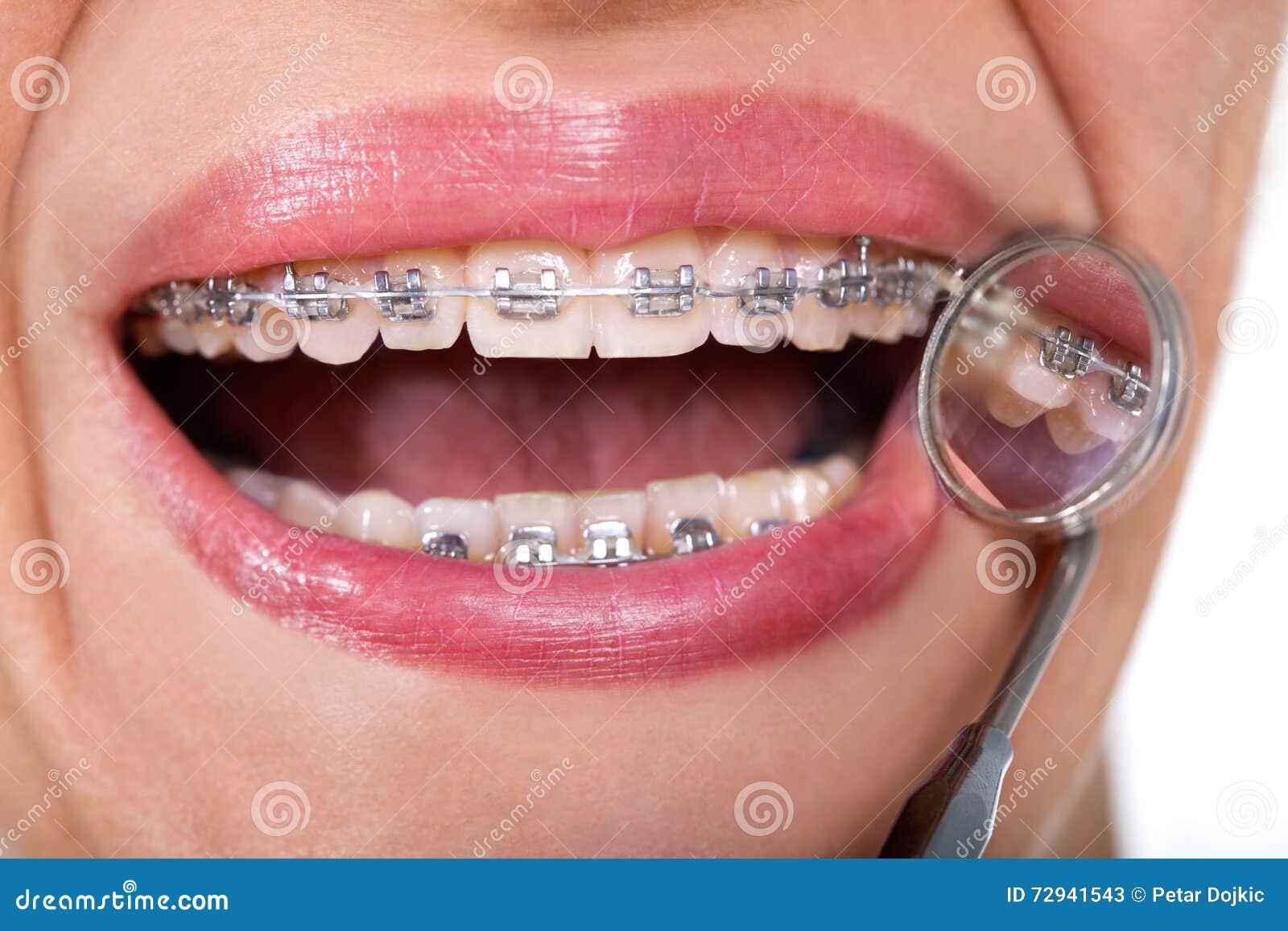 Θηλυκός ασθενής που παρουσιάζει γλωσσικά στηρίγματά της στον οδοντικό καθρέφτη