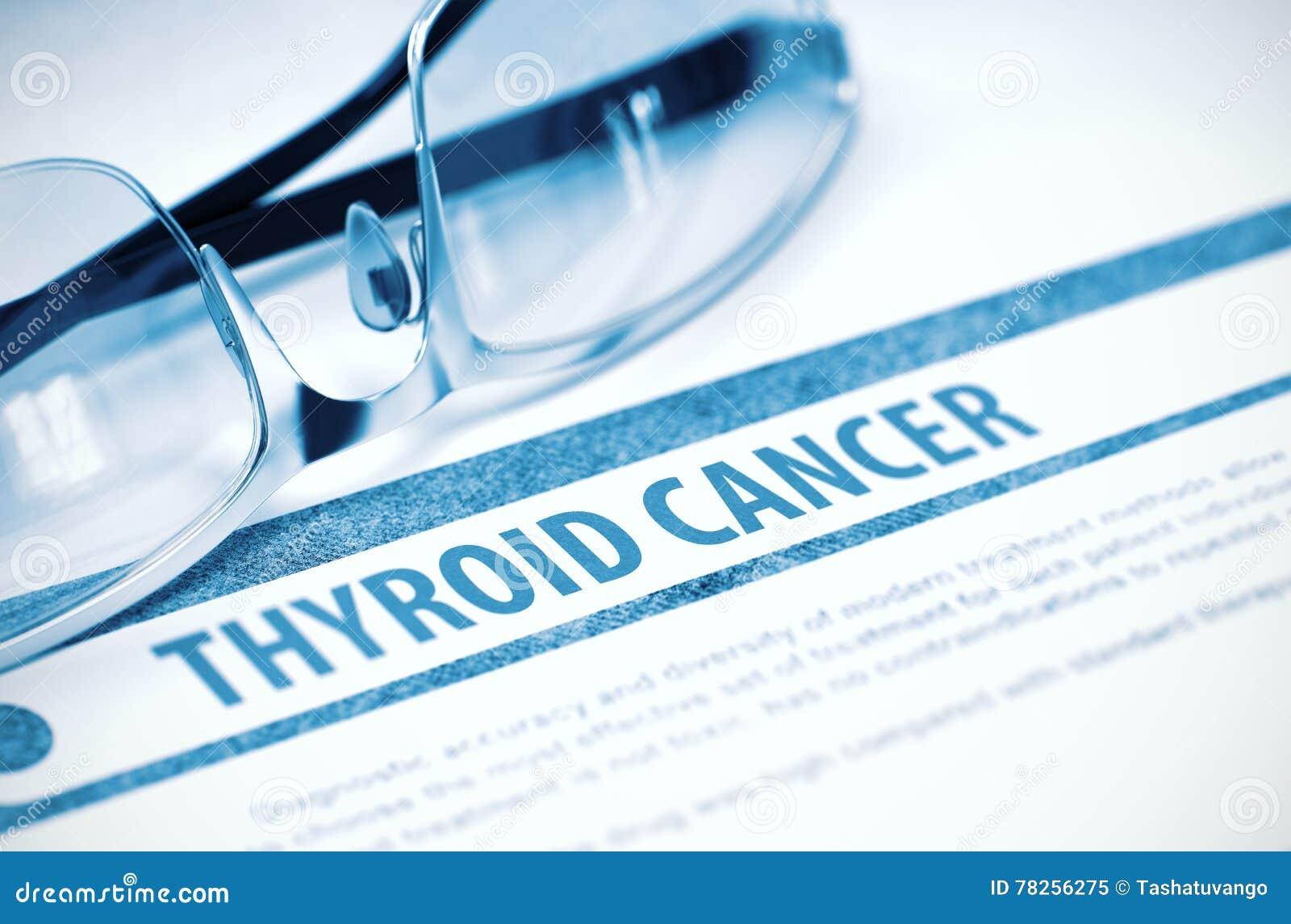 Καρκίνος θυροειδή Ιατρική τρισδιάστατη απεικόνιση