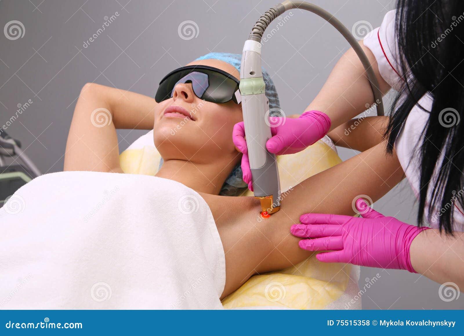 Κατοχή underarm του epilation αφαίρεσης τρίχας λέιζερ