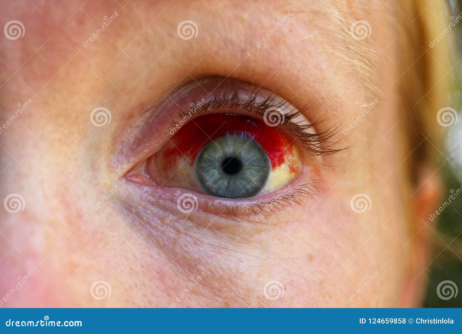Κλείστε επάνω του ματιού γυναικών ` s με την αιμορραγία Subconjuctival, σπασμένο Β