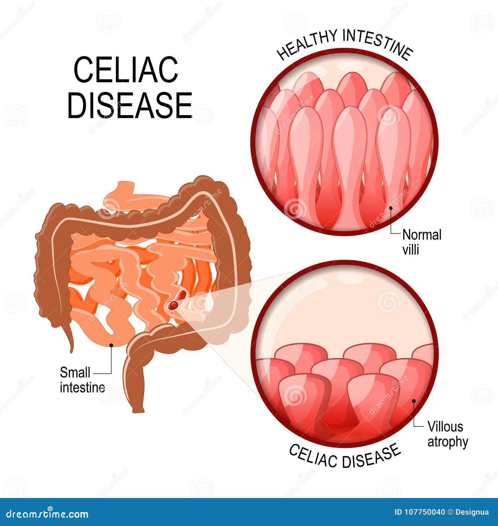 Κοιλιακή ασθένεια μικροί εντερικός με κανονικά villi, και villous