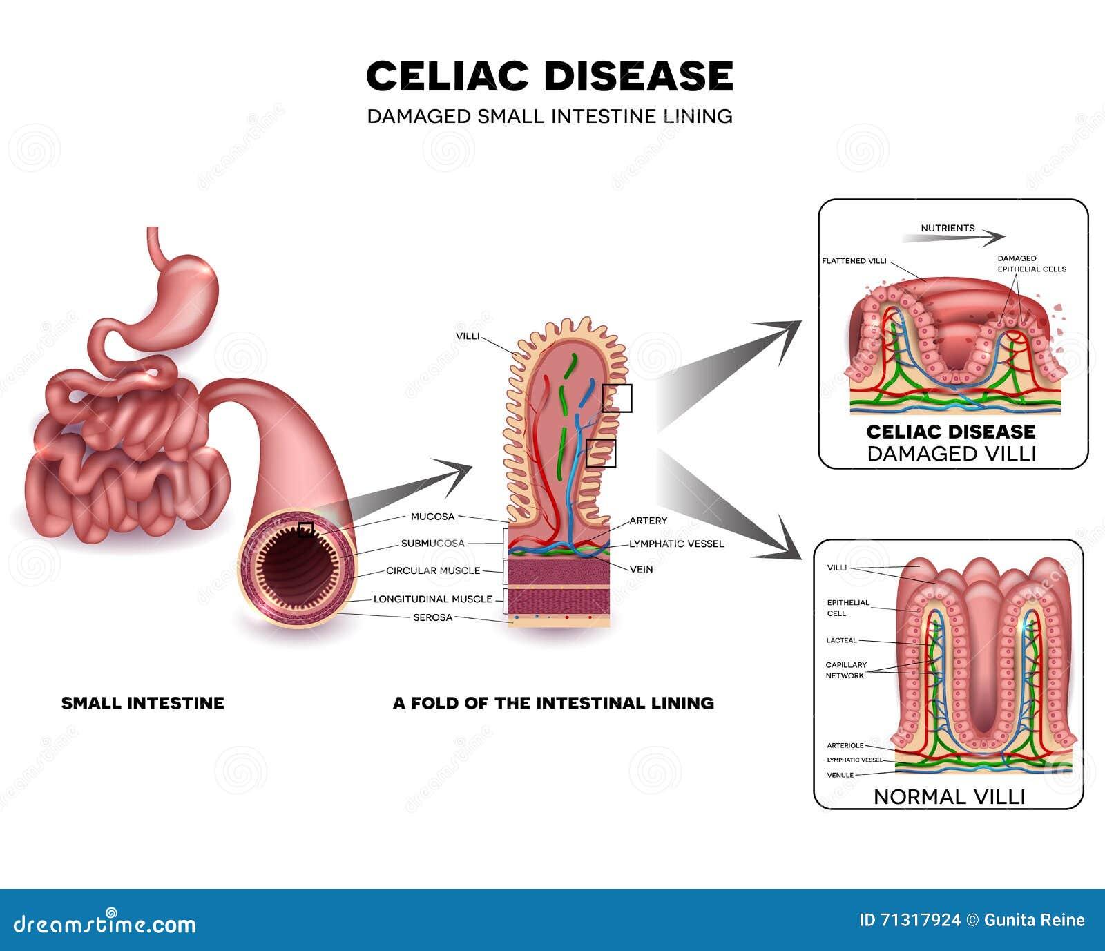 Κοιλιακή ασθένεια