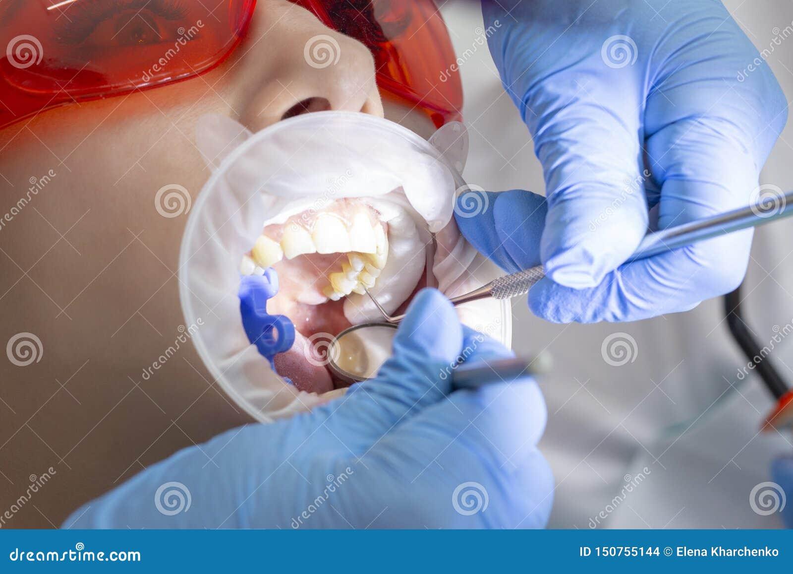 Κορίτσι στην εξέταση στην επεξεργασία οδοντιάτρων του τερηδονισμένου δοντιού ο γιατρός χρησιμοποιεί έναν καθρέφτη στη λαβή και μι