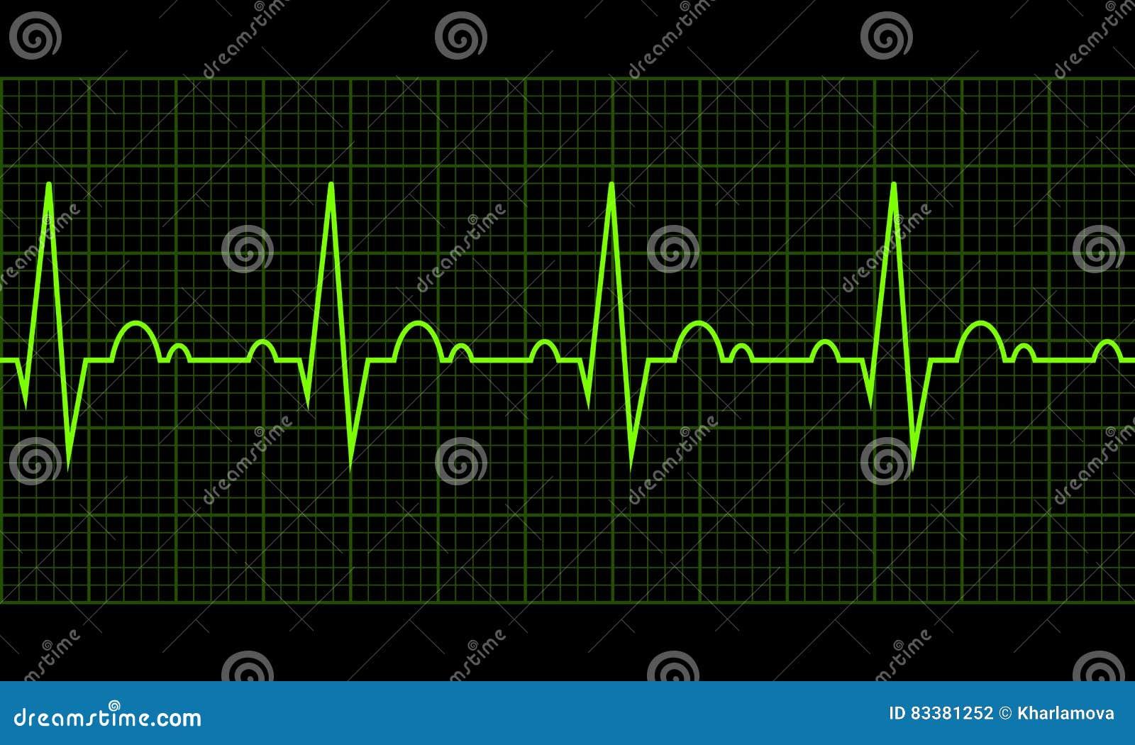 κτυπήστε την καρδιά καρδιογράφημα Καρδιακός κύκλος