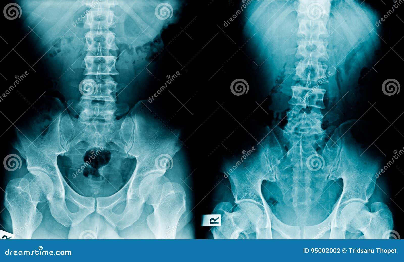 Λεκάνη και σπονδυλική στήλη ακτίνας X