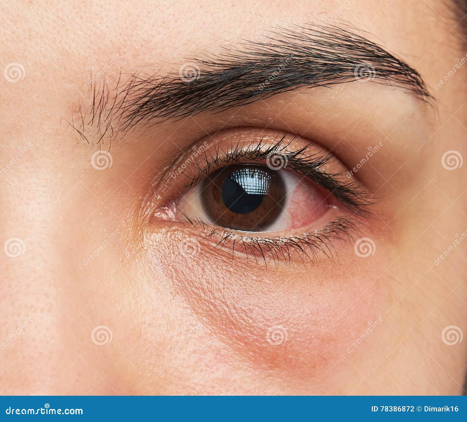 Μάτι με τη μόλυνση
