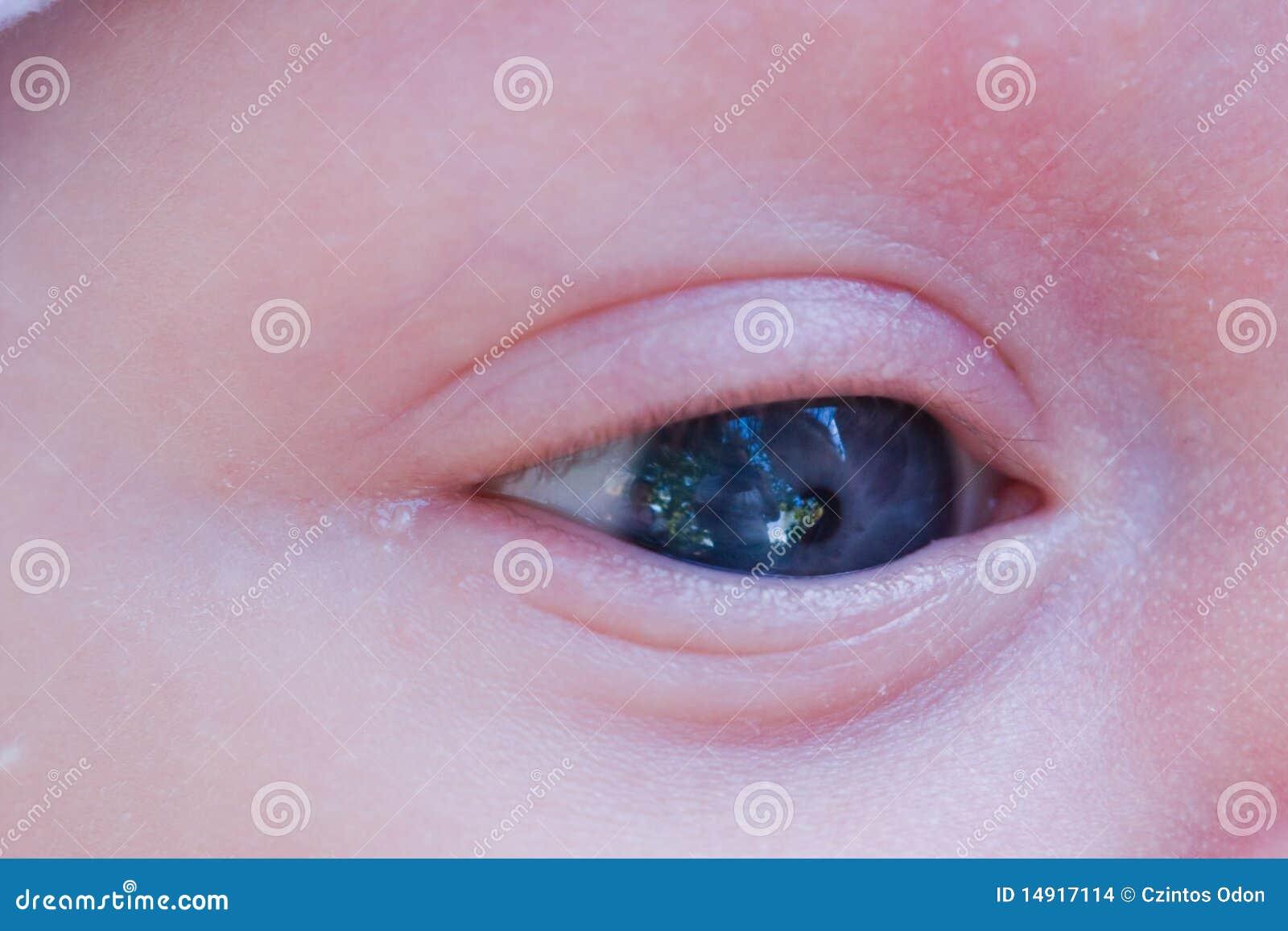 μάτι μωρών