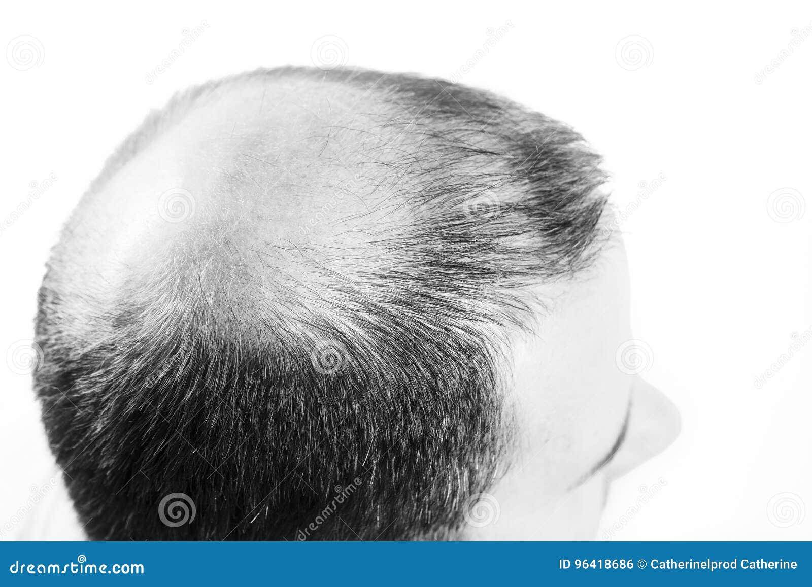 Μέσης ηλικίας ενδιαφερόμενο άτομο με alopecia φαλάκρας απώλειας τρίχας γραπτό