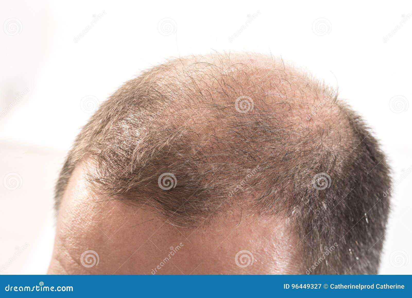 Μέσης ηλικίας ενδιαφερόμενο άτομο με alopecia φαλάκρας απώλειας τρίχας κοντά επάνω το άσπρο υπόβαθρο