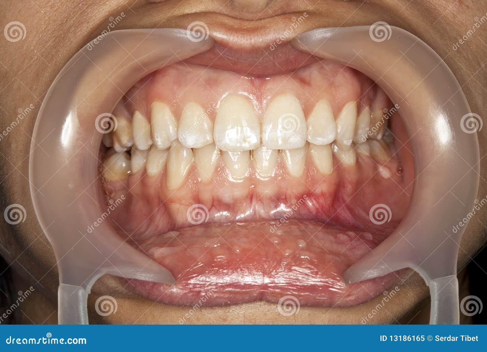 μακρο δόντι
