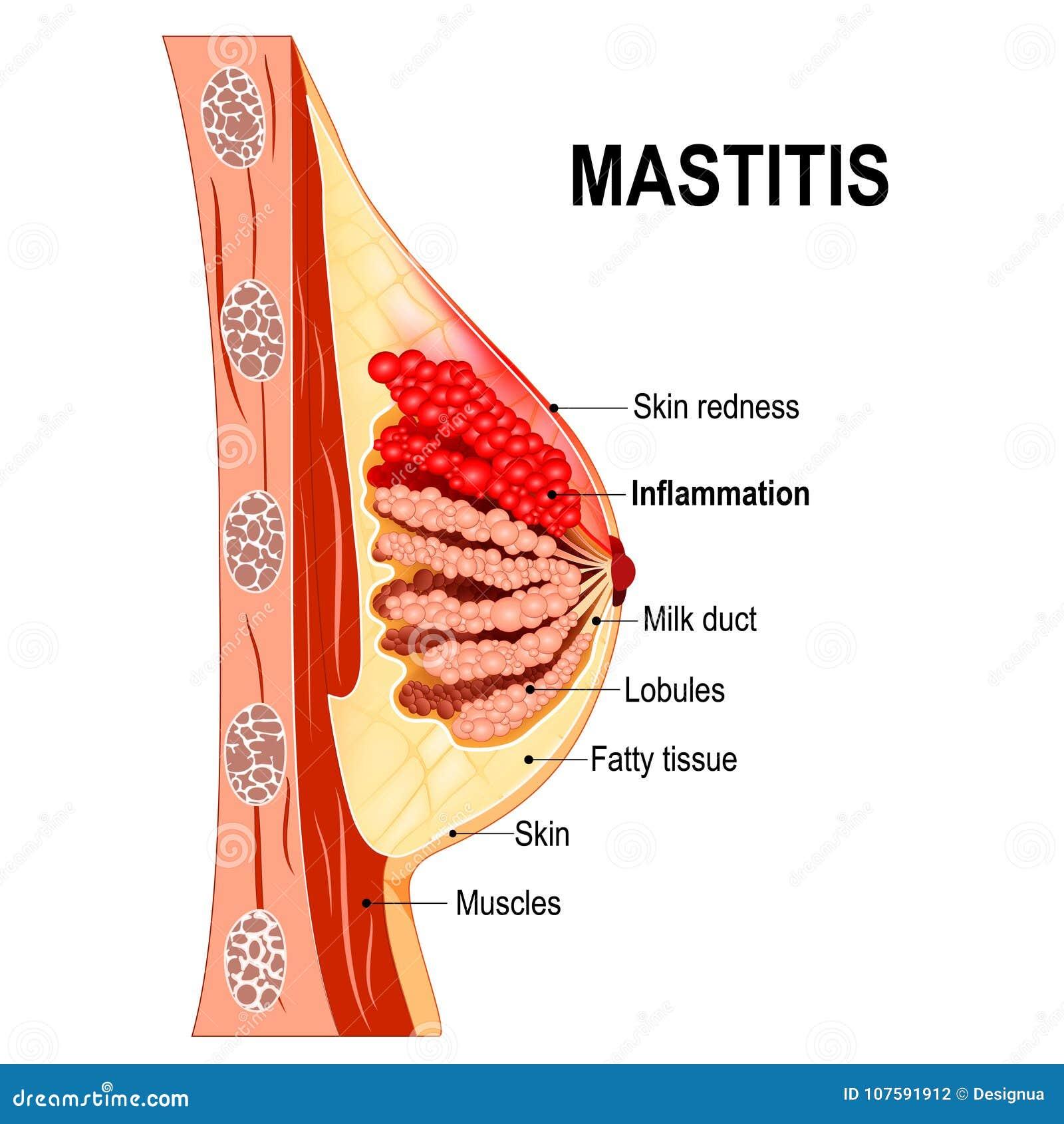 μαστίτιδα Διατομή του μαστικού αδένα με την ανάφλεξη ο