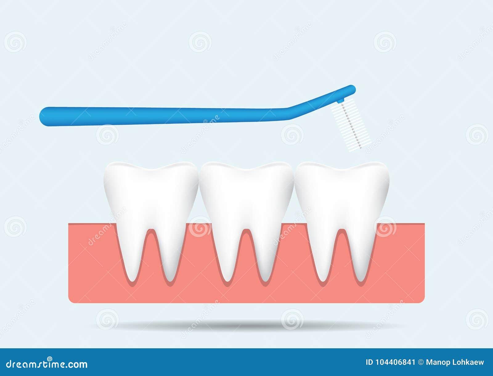 Μεσοδόντια βούρτσα με τα δόντια στη γόμμα στο μπλε υπόβαθρο, οδοντική διανυσματική απεικόνιση έννοιας προσοχής