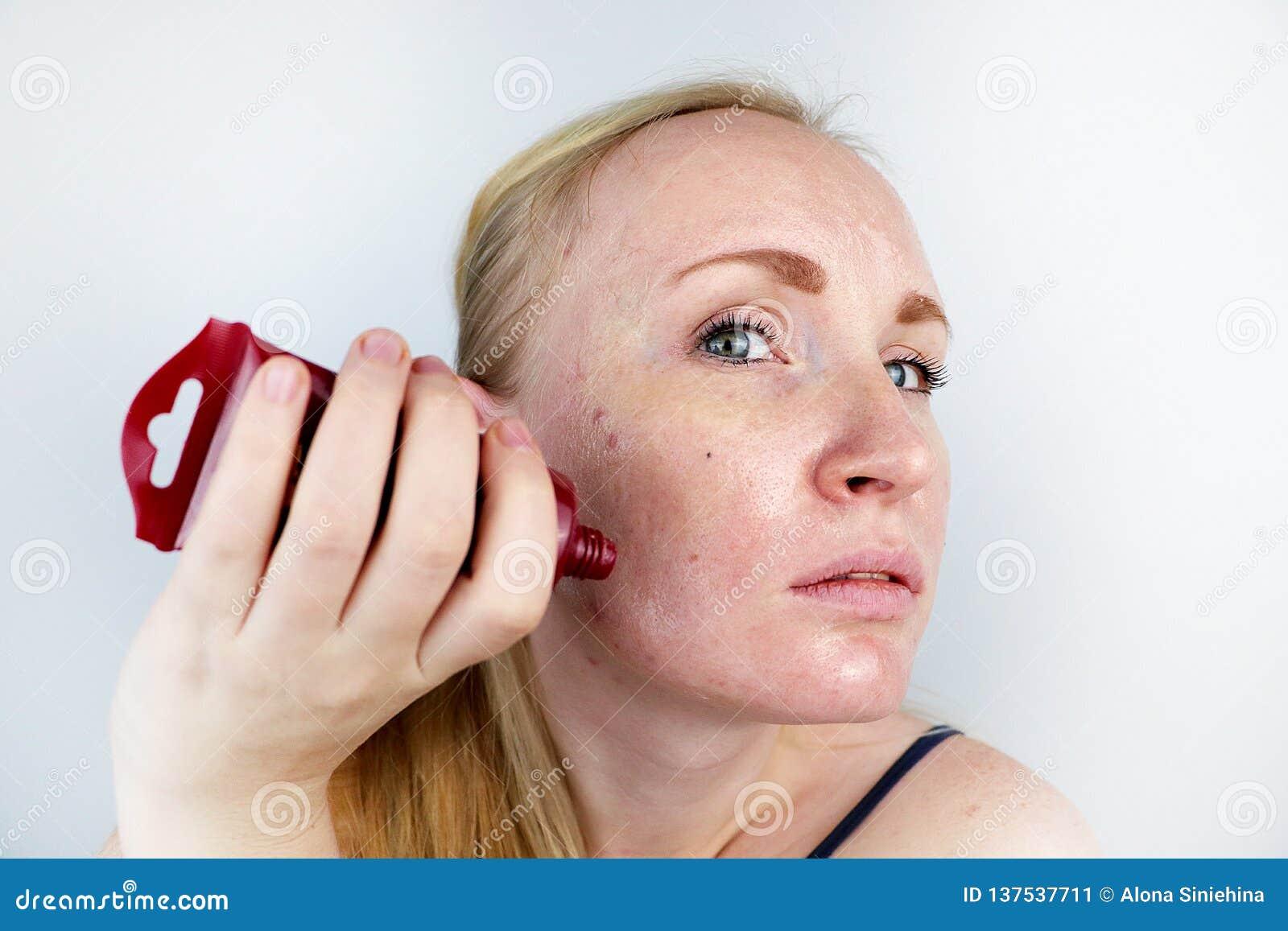 Μια νέα γυναίκα βάζει μια μάσκα πηκτωμάτων στο πρόσωπό της Προσοχή για το ελαιούχο, δέρμα προβλήματος