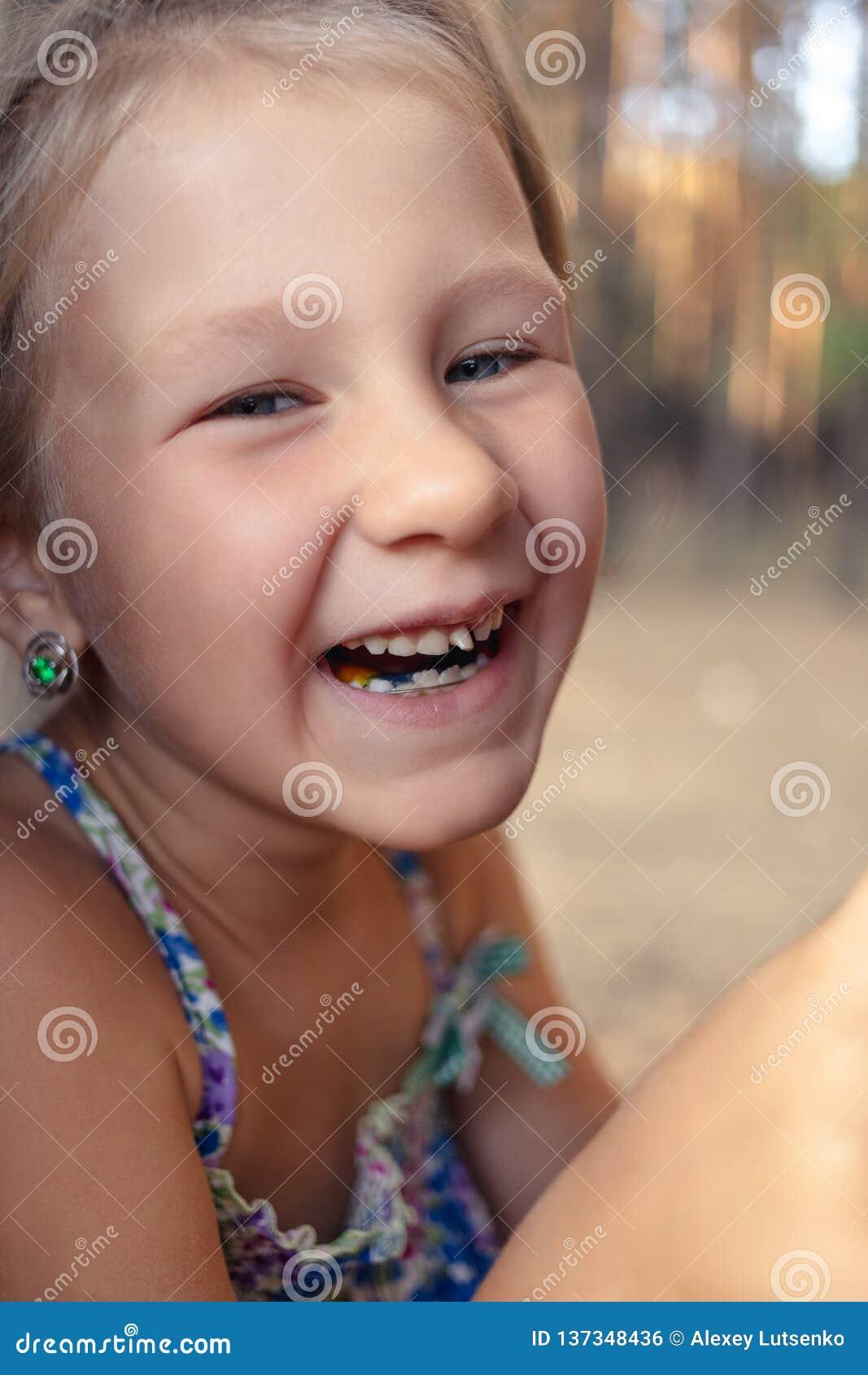 Μικρό κορίτσι με orthodontics τη συσκευή και το wobbly δόντι
