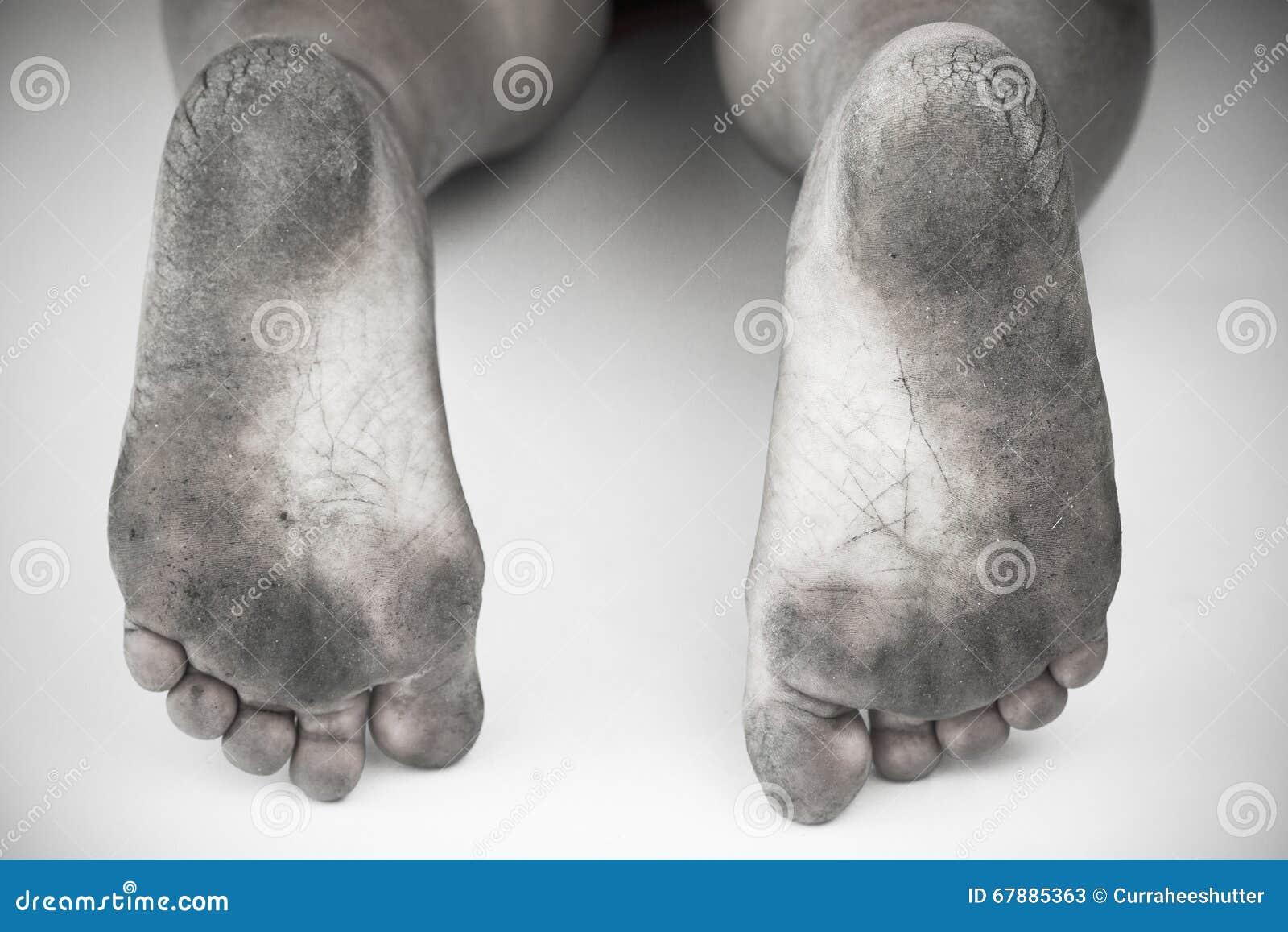 Μονοχρωματικός ή πίσω και άσπρος του βρώμικου ποδιού ή των ραγισμένων τακουνιών απομονώστε στο άσπρο υπόβαθρο, ιατρικός ή τα πόδι