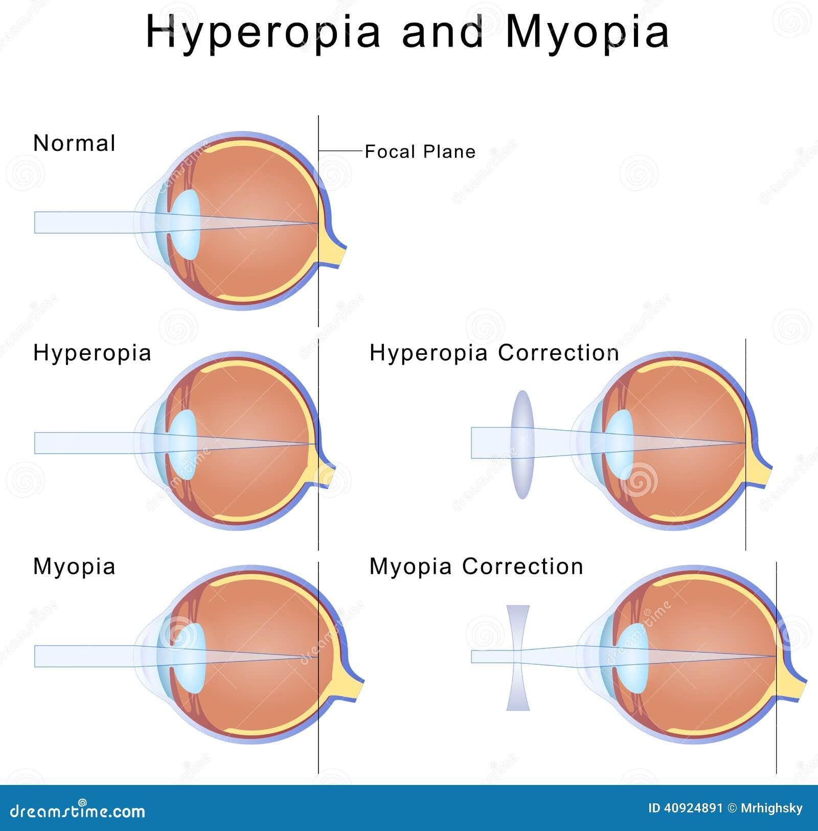 d192f1b452 Απεικόνιση του όρου μυωπίας και hyperopia των ματιών και της διόρθωσής τους