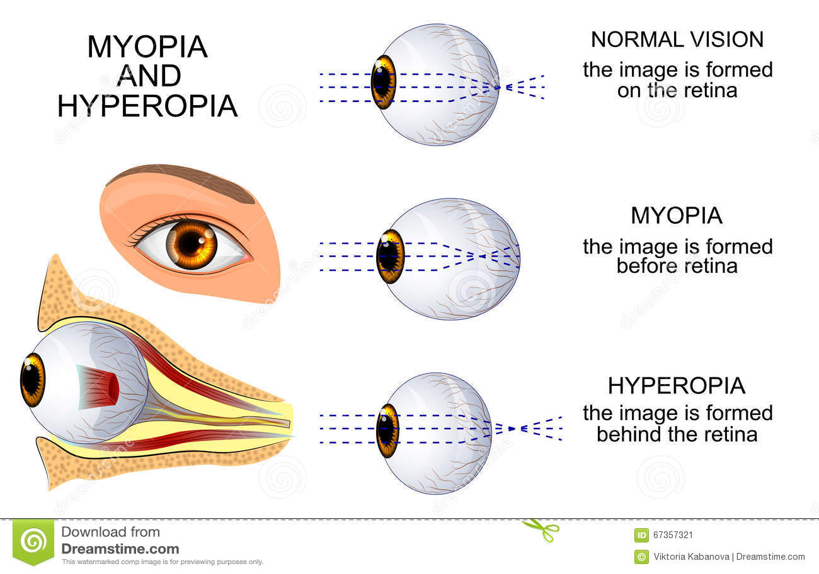 6d8f8aea1e Μυωπία και Hyperopia διανυσματική απεικόνιση. εικονογραφία από ...