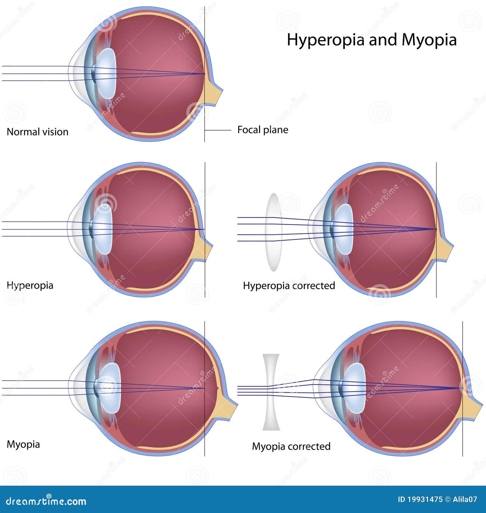 4c940f751e μυωπία hyperopia διανυσματική απεικόνιση. εικονογραφία από κυρτός ...