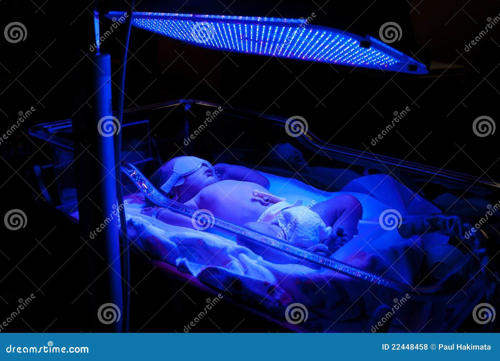 μωρό phototherapy