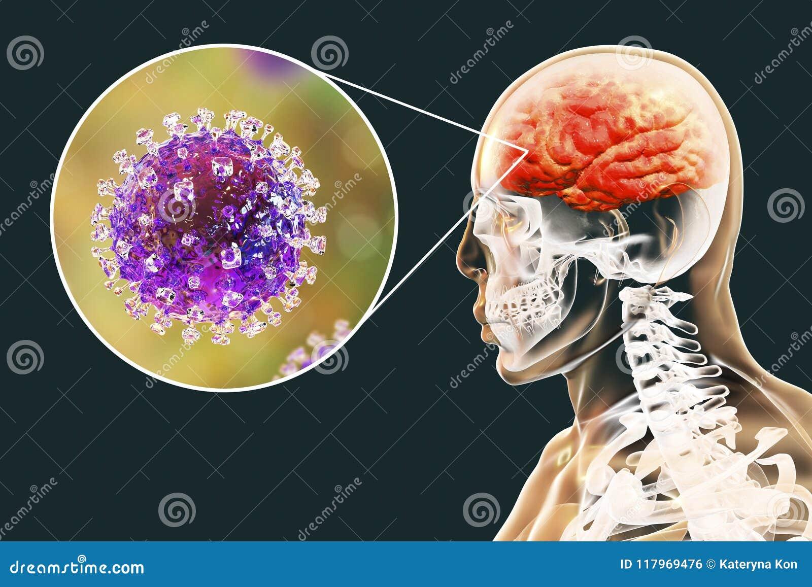Μόλυνση ιών Nipah