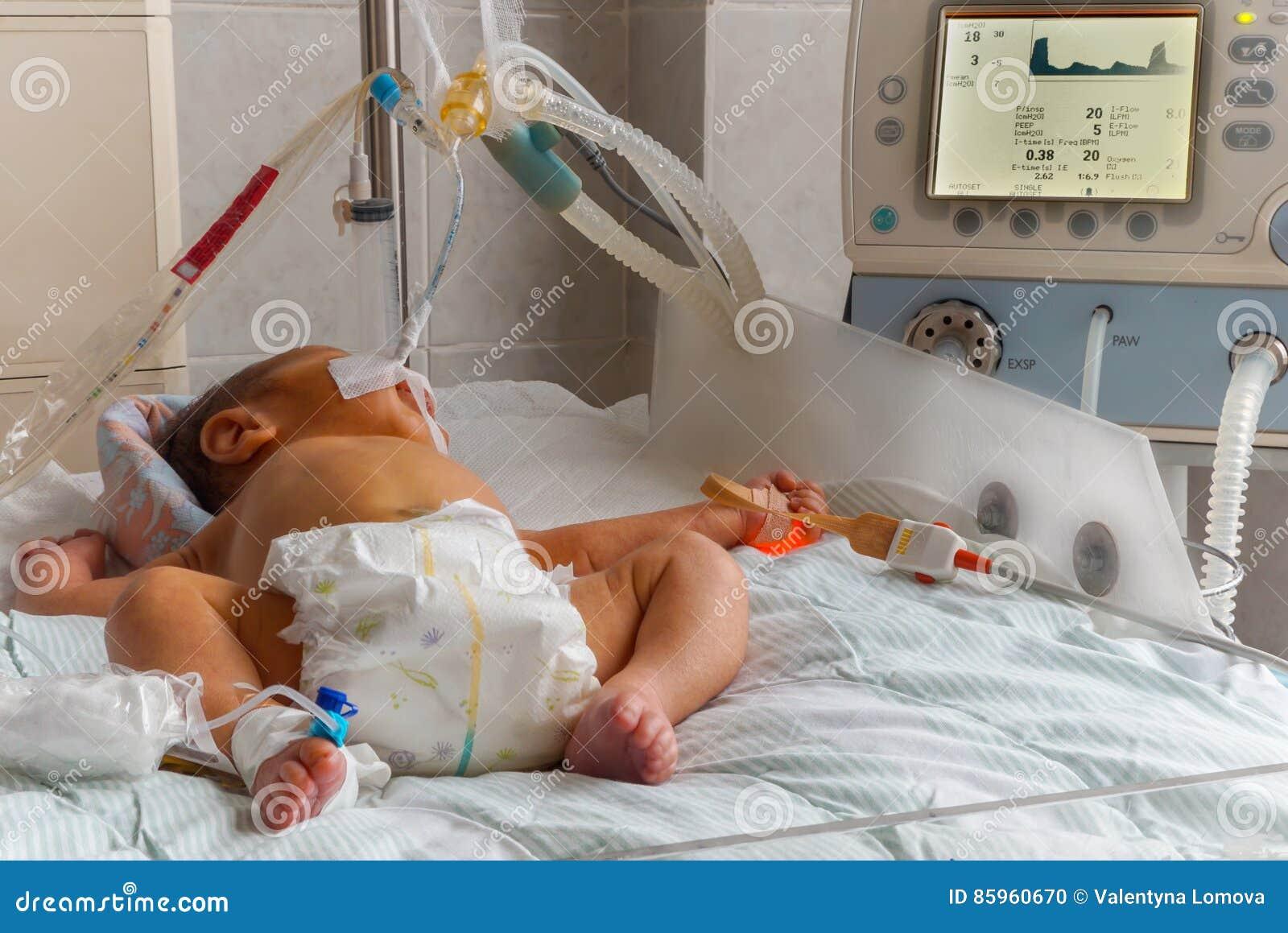 Νεογέννητο μωρό με το hyperbilirubinemia στην αναπνοή της μηχανής με τον αισθητήρα oximeter σφυγμού και του περιφερειακού ενδοφλέ