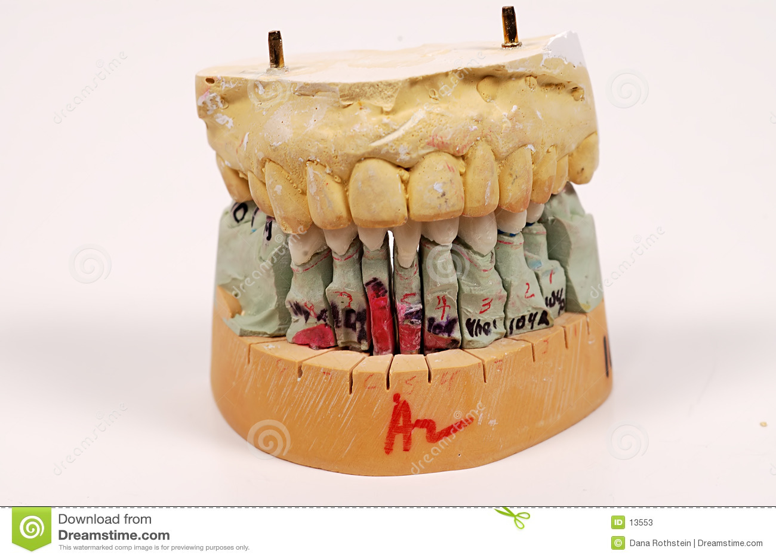 οδοντικές εντυπώσεις