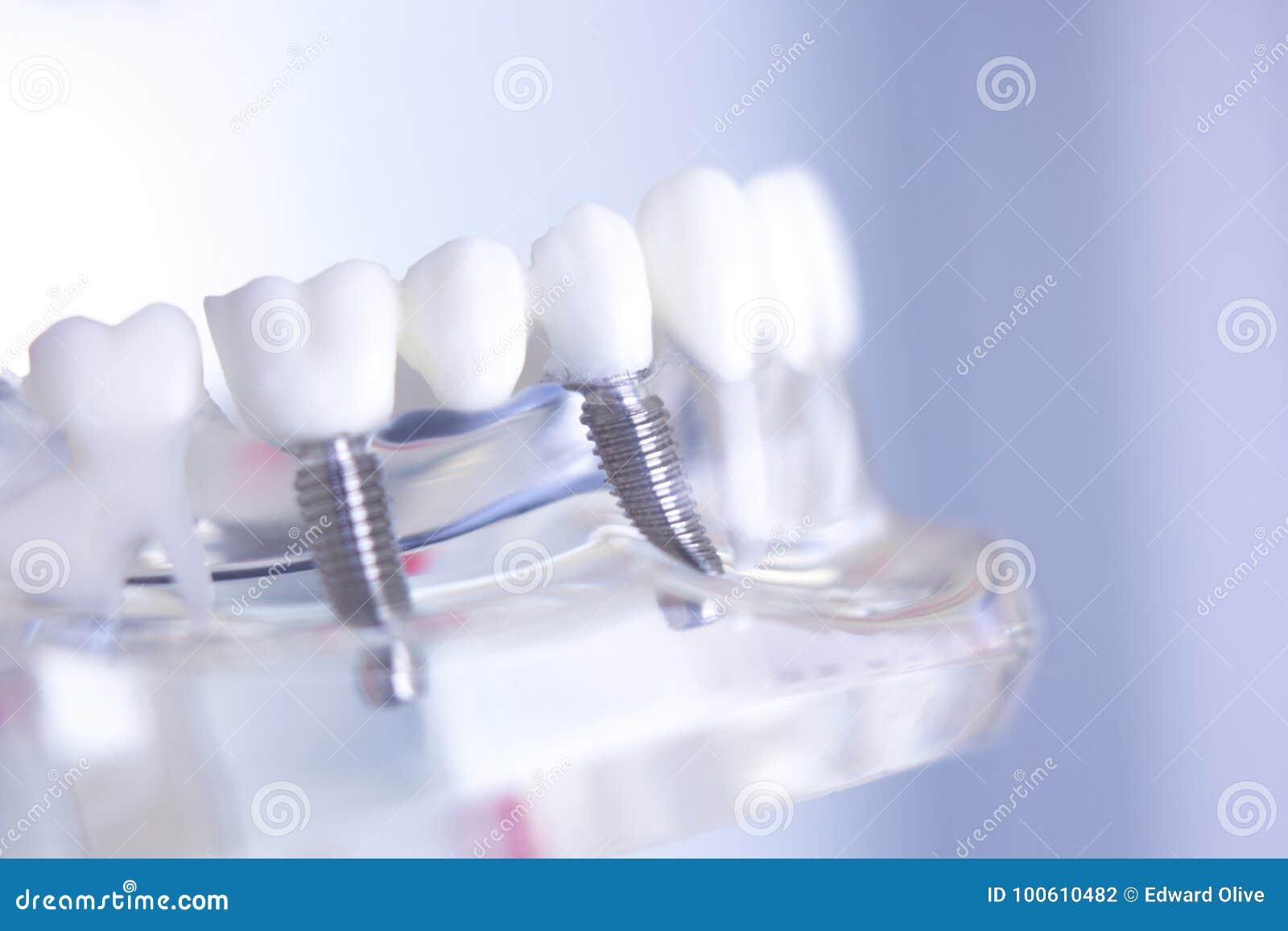 Οδοντικό μόσχευμα δοντιών Dentsts