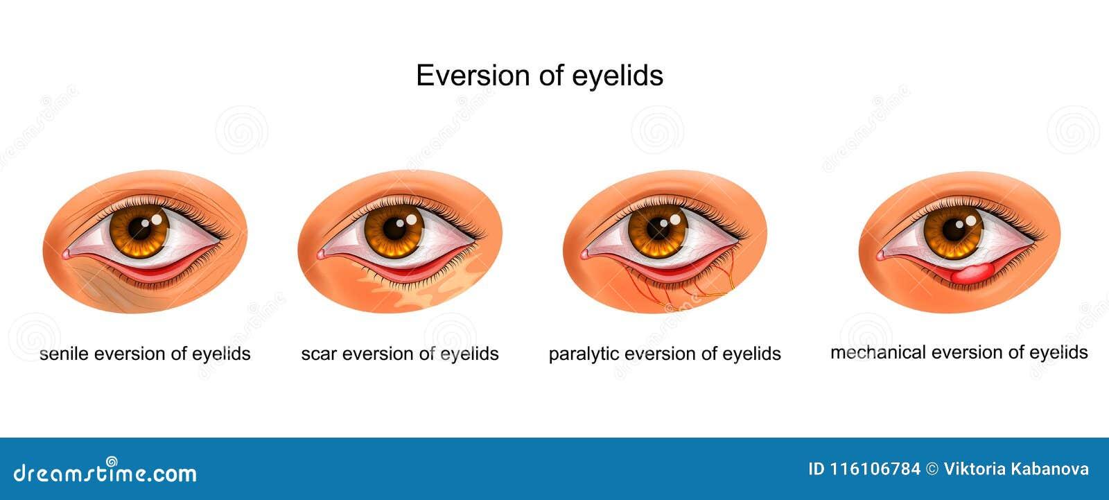 Οι αιτίες eversion των βλέφαρων