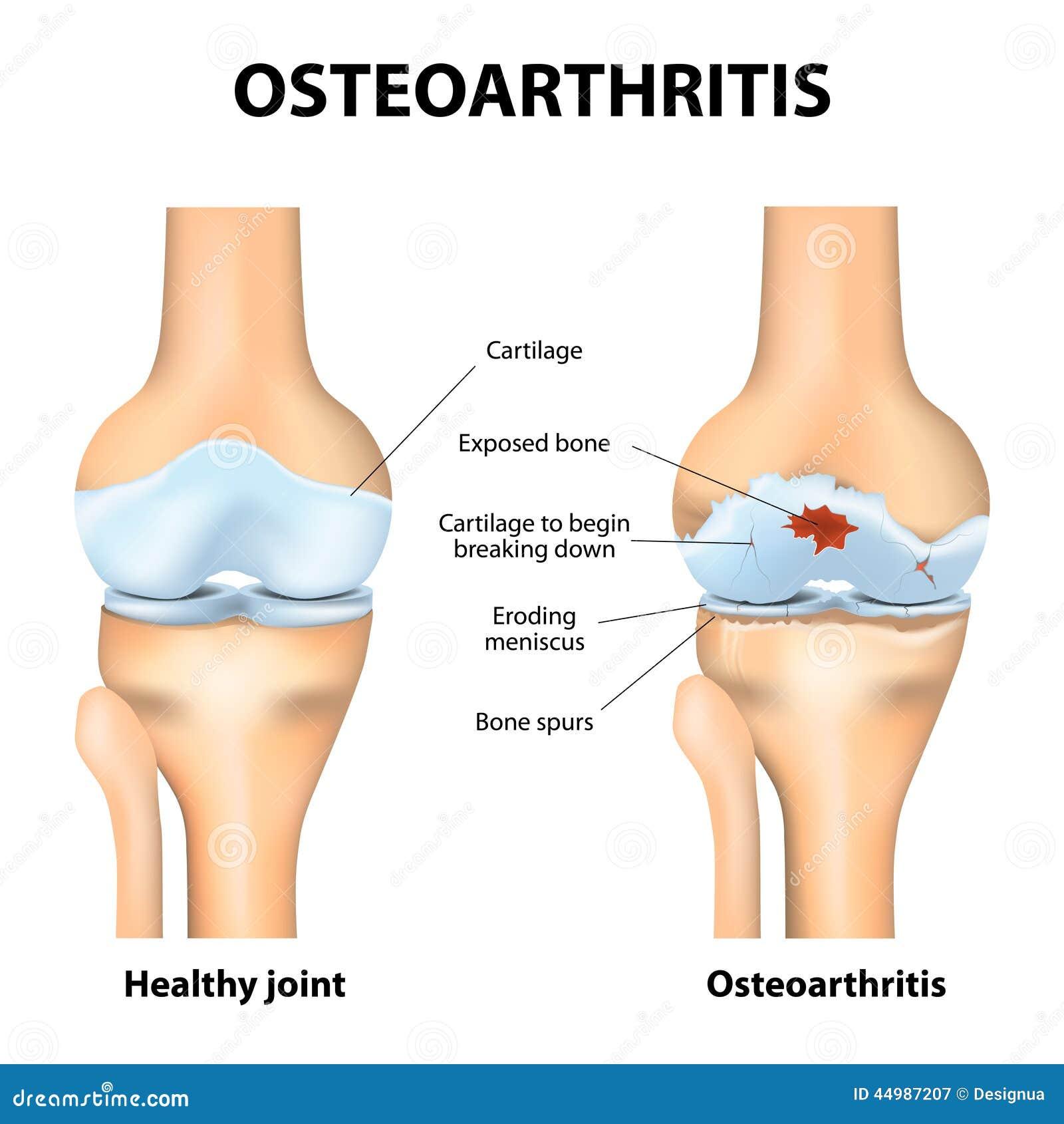 Οστεοαρθρίτιδα ή αρθρίτιδα