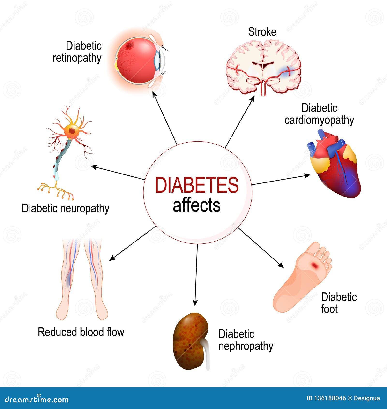Ο διαβήτης έχει επιπτώσεις Περιπλοκές του διαβήτη mellitus