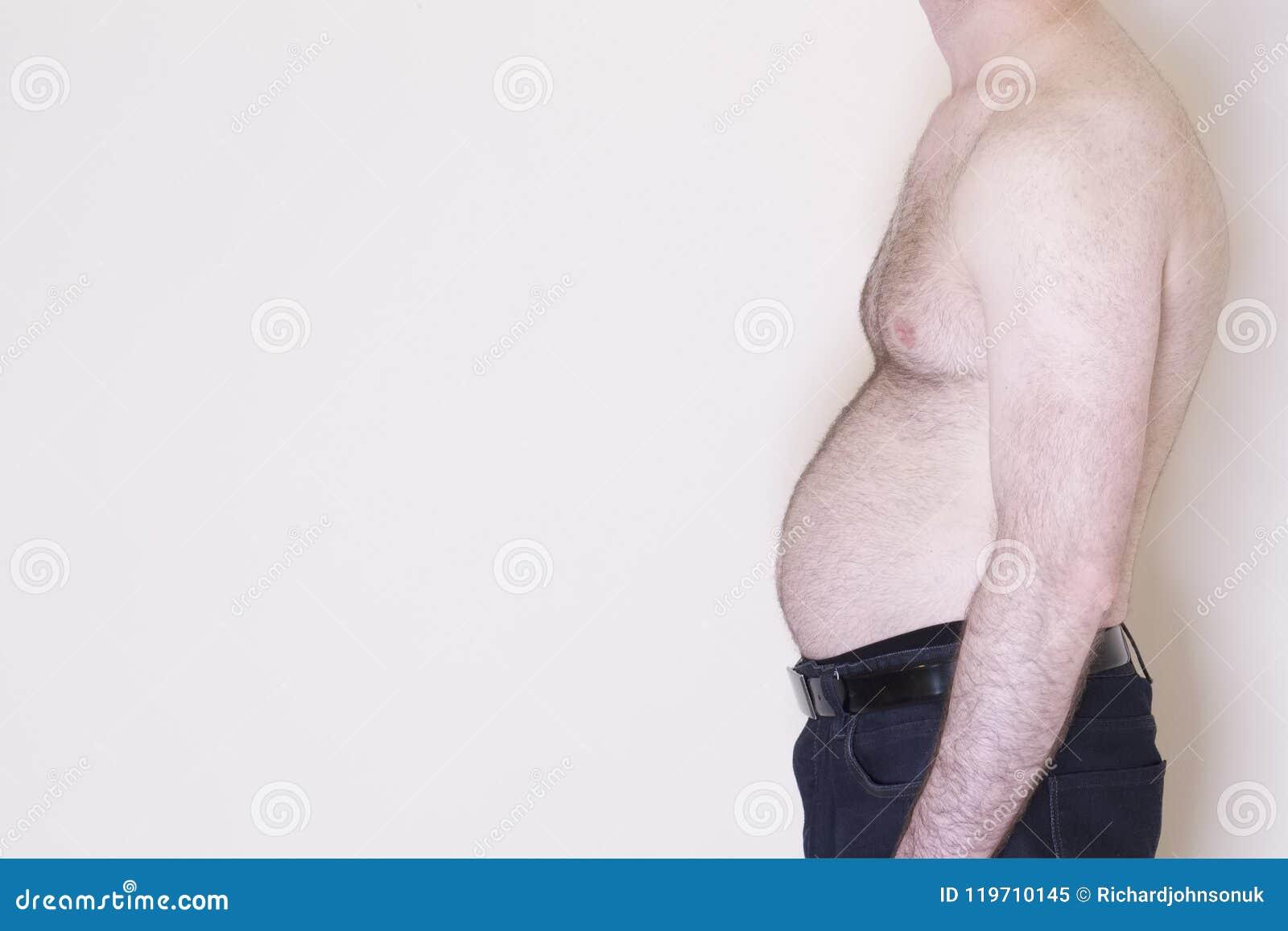 Ο Μεσαίωνας διέδωσε το υπέρβαρο μπύρας κοιλιών tummy αρσενικό ατόμων στομάχι βάρους παχυσαρκίας τρόπου ζωής υγείας ανθυγειινό